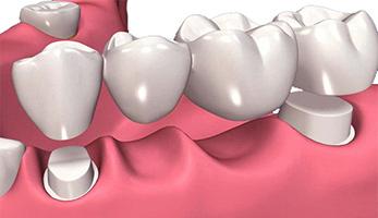 Dental Crowns Mississauga