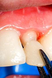 Dental Crown Mississauga